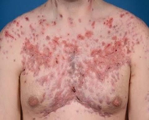 Efectos secundarios de los esteroides anabolizantes